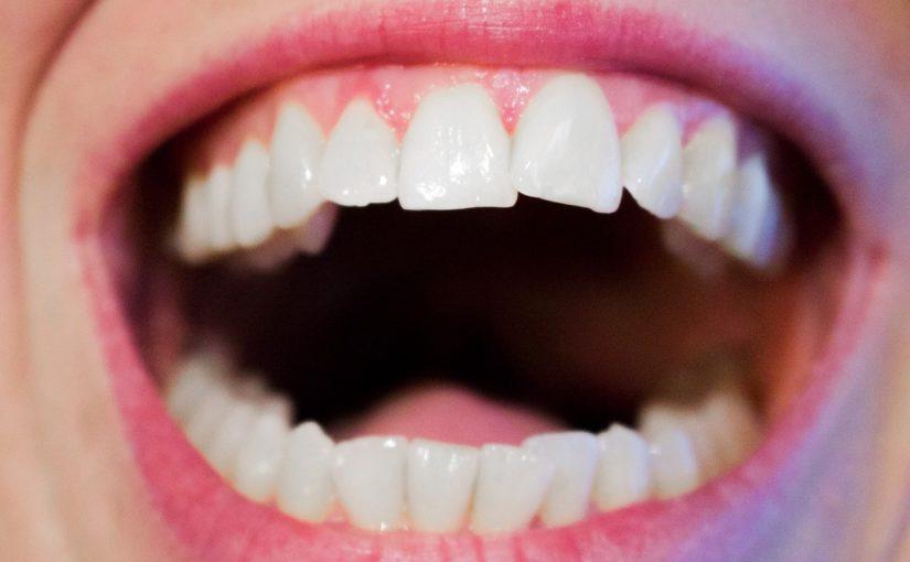 Aktualna technologia używana w salonach stomatologii estetycznej może spowodować, że odzyskamy piękny uśmieszek.